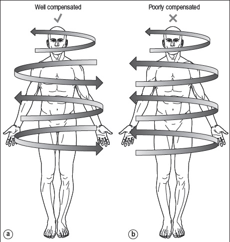 trigger points & myofascial pain syndrome pdf
